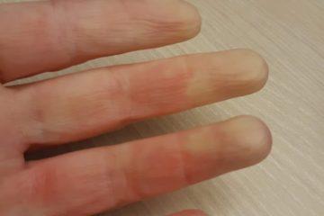Afbeelding van een 4 vingers van een winterhand